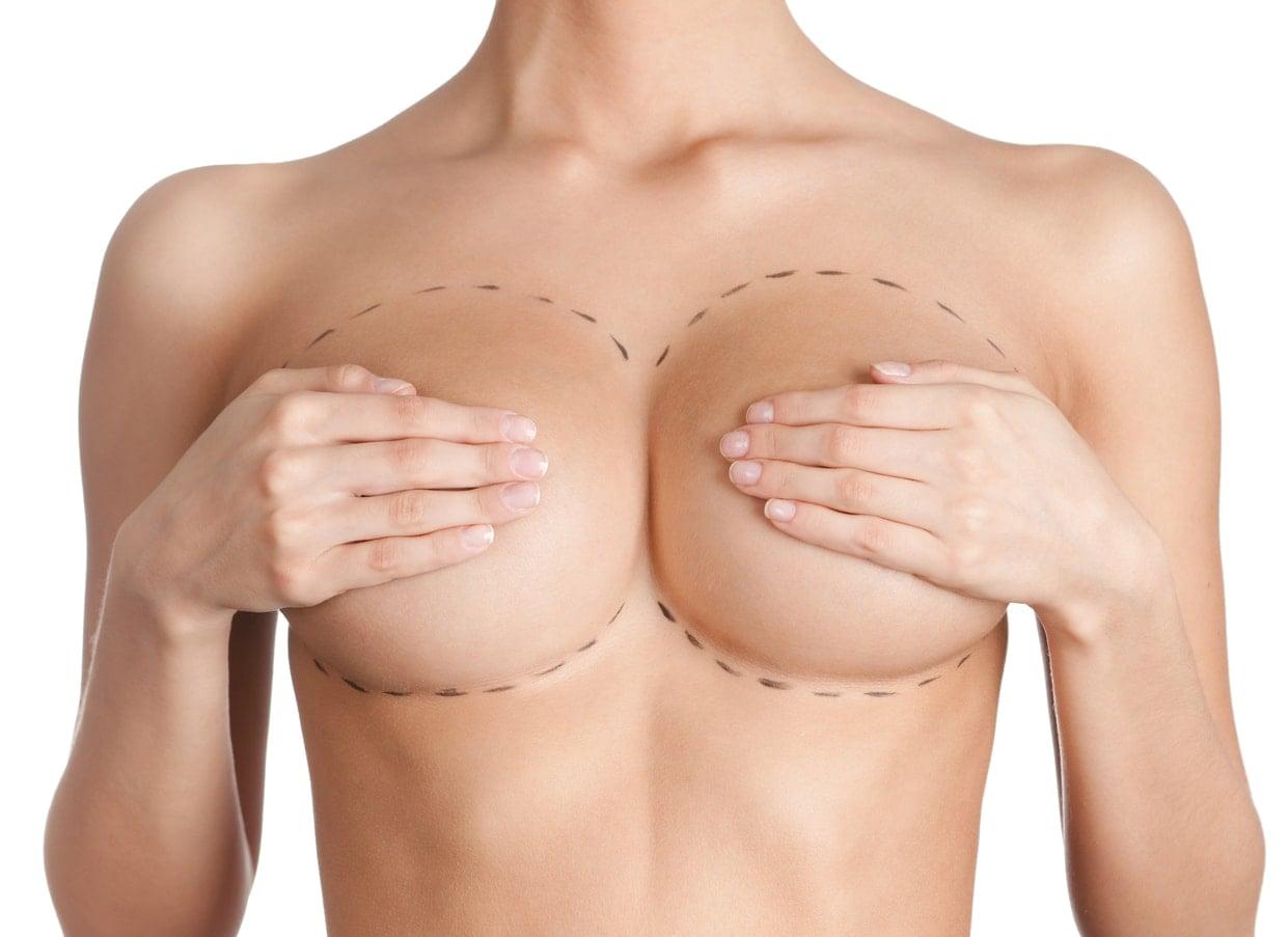 Brystreduksjon er mer enn et estetisk inngrep